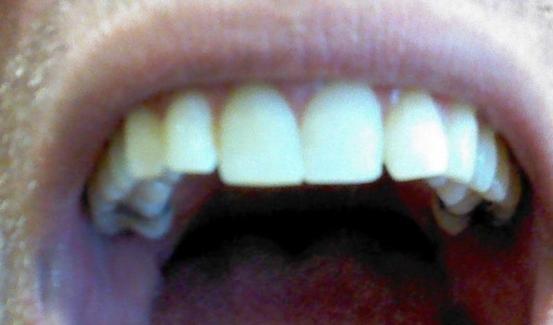 A Kayak accident chipped this patient's front teeth